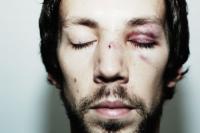Distinguer une agression pour coups et blessures volontaire et involontaire