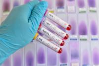 Effectuer un test de dépistage des infections sexuellement transmissibles (IST)